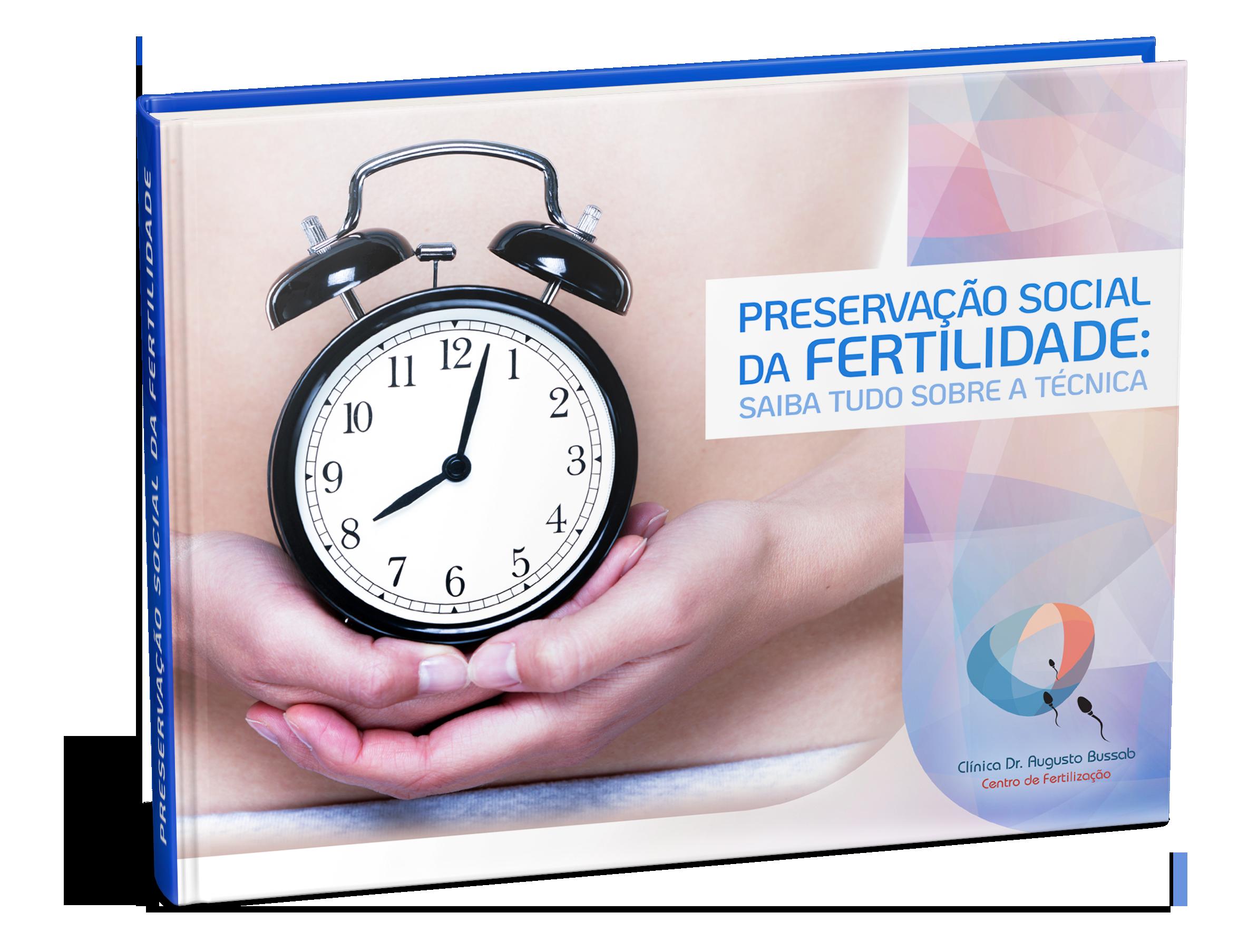 E-book | Preservação Social da Fertilidade: Saiba tudo sobre a técnica | Dr. Augusto Bussab